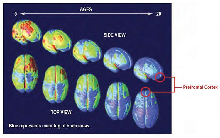 El cerebro continúa desarrollándose hasta la adultez temprana. Las regiones cerebrales maduras en cada etapa de desarrollo están indicadas en azul. La corteza prefrontal (círculos rojos), que gobierna el juicio y el autocontrol, es la última parte del cerebro en madurar. Fuente: PNAS 101: 8174-8179, 2004.